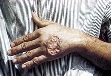 بیماری لیشمانیاسیس، لیشمانیاسیس، بیماری منتقله از حشرات ، بیماری منتقله از پشه ، بیماری منتقله از پشه خاکی ، علایم بیماری لیشمانیاسیس، درمان بیماری لیشمانیاسیس